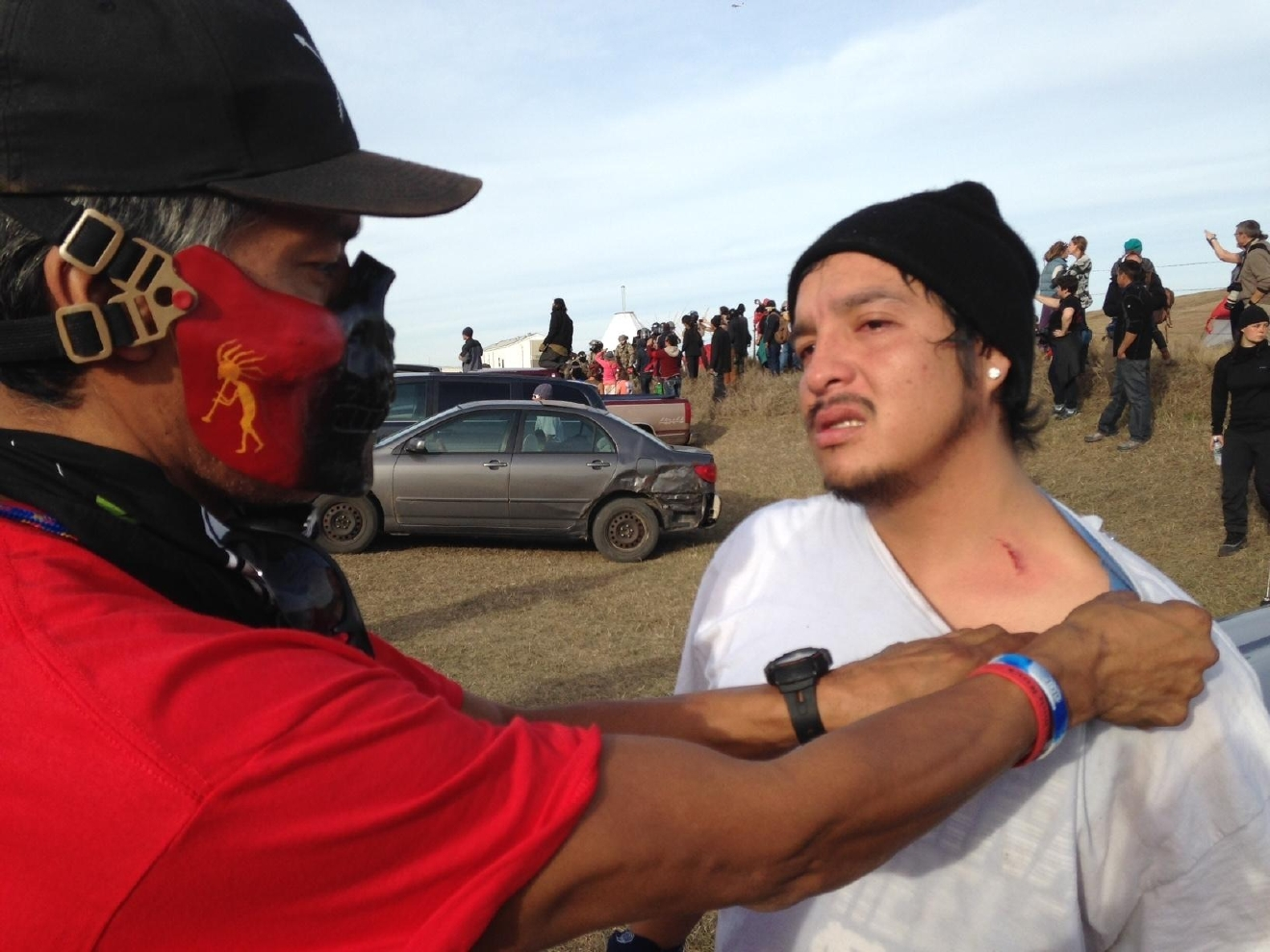 A Dakota Access oil pipeline protester shows where he was hit by a shotgun bean bag round fired by officers trying to force protesters from a camp on private land in the path of pipeline construction, Thursday, Oct. 27, 2016. near Cannon Ball, N.D. Authorities say protesters threw rocks at officers and threatened them on horseback. Soldiers and law enforcement officers dressed in riot gear began arresting protesters who had set up a camp on private land to block construction of the Dakota Access oil pipeline. (AP Photo/James MacPherson)
