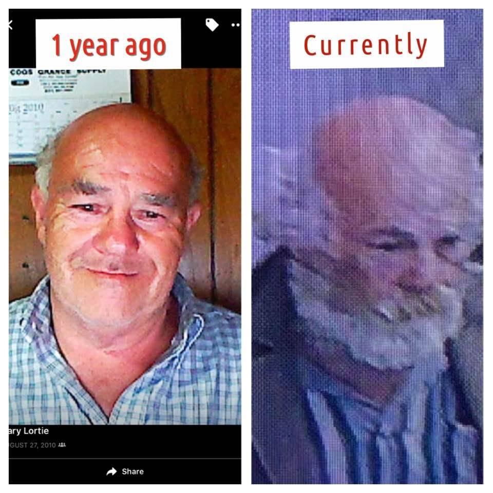 Gary Allen Lortie: 1 year ago (left image) and in April 2017 (right image). He was reported missing after leaving Bay Area Hospital against medical advice, police said. (Photos courtesy Sarah Kachel via Facebook group)