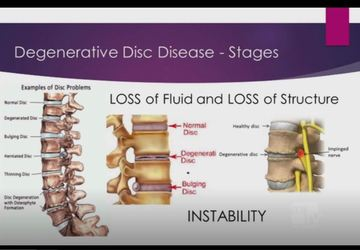 GBMC HEALTH: Degenerative Disk Disease