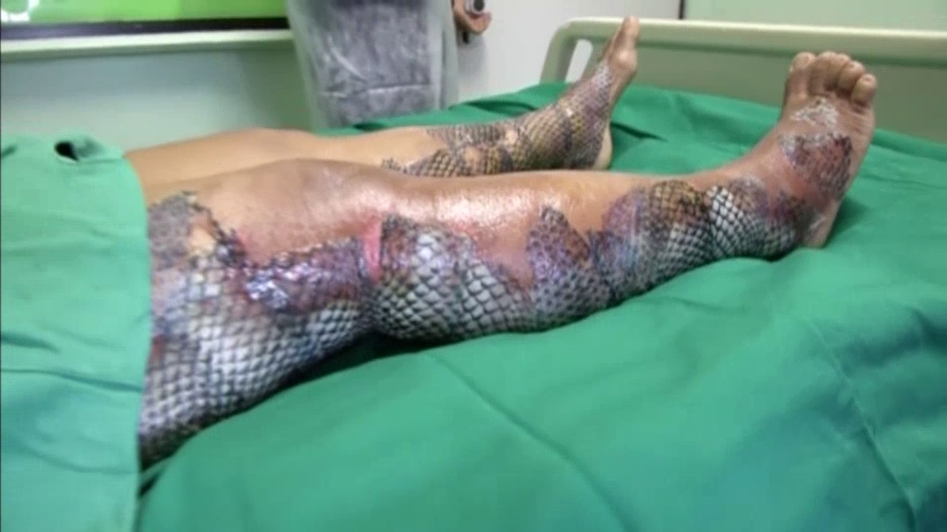 Fish skin being used as bandages for burn victims woai for Fish skin for burns