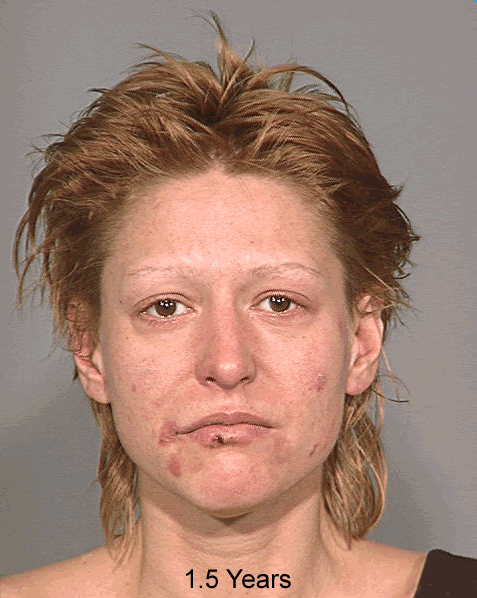 "Photo of same woman taken 1.5 years after methamphetamine related use according to Multnomah County Sheriff's Office, Oregon. The photo was part of a 2005 project called ""Faces of Meth"" put on by the Multnomah County Sheriff's Office to help raise awareness about the drug's dangers.  (Photo and info courtesy of the Multnomah County Sheriff's Office)"