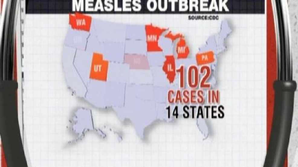 CDC Releases Latest Measles Outbreak Numbers
